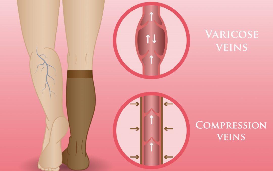 3 Ways Compression Socks And Stockings Help Nurses